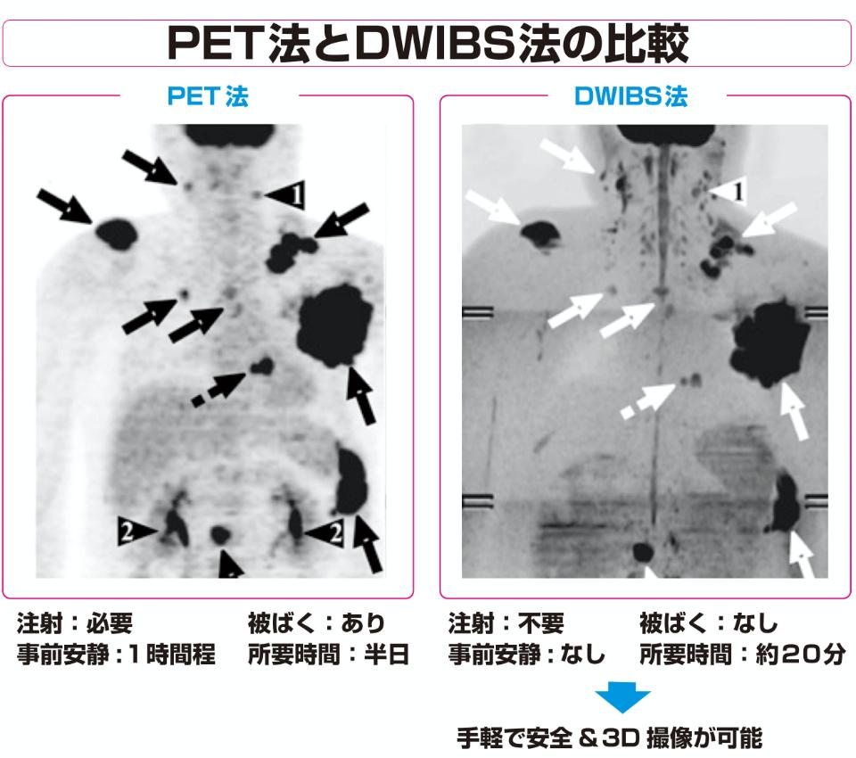 PET法とDWIBS法の比較